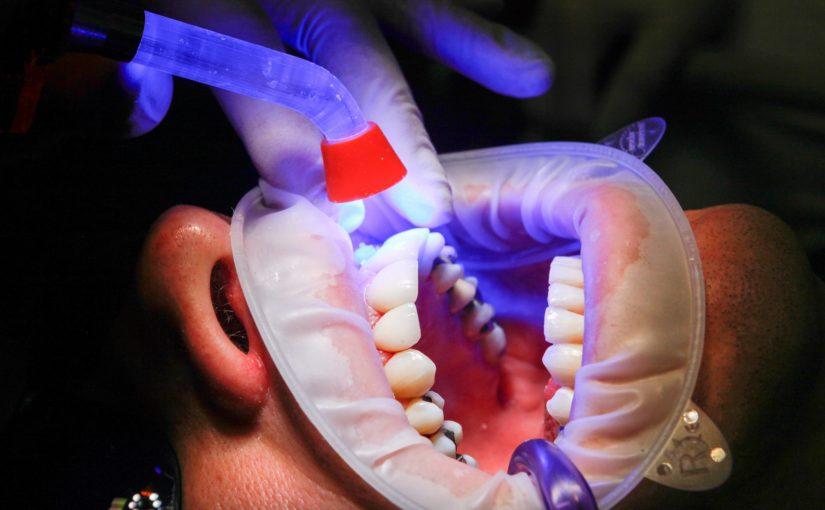 Zła droga żywienia się to większe niedostatki w ustach a także ich zgubę